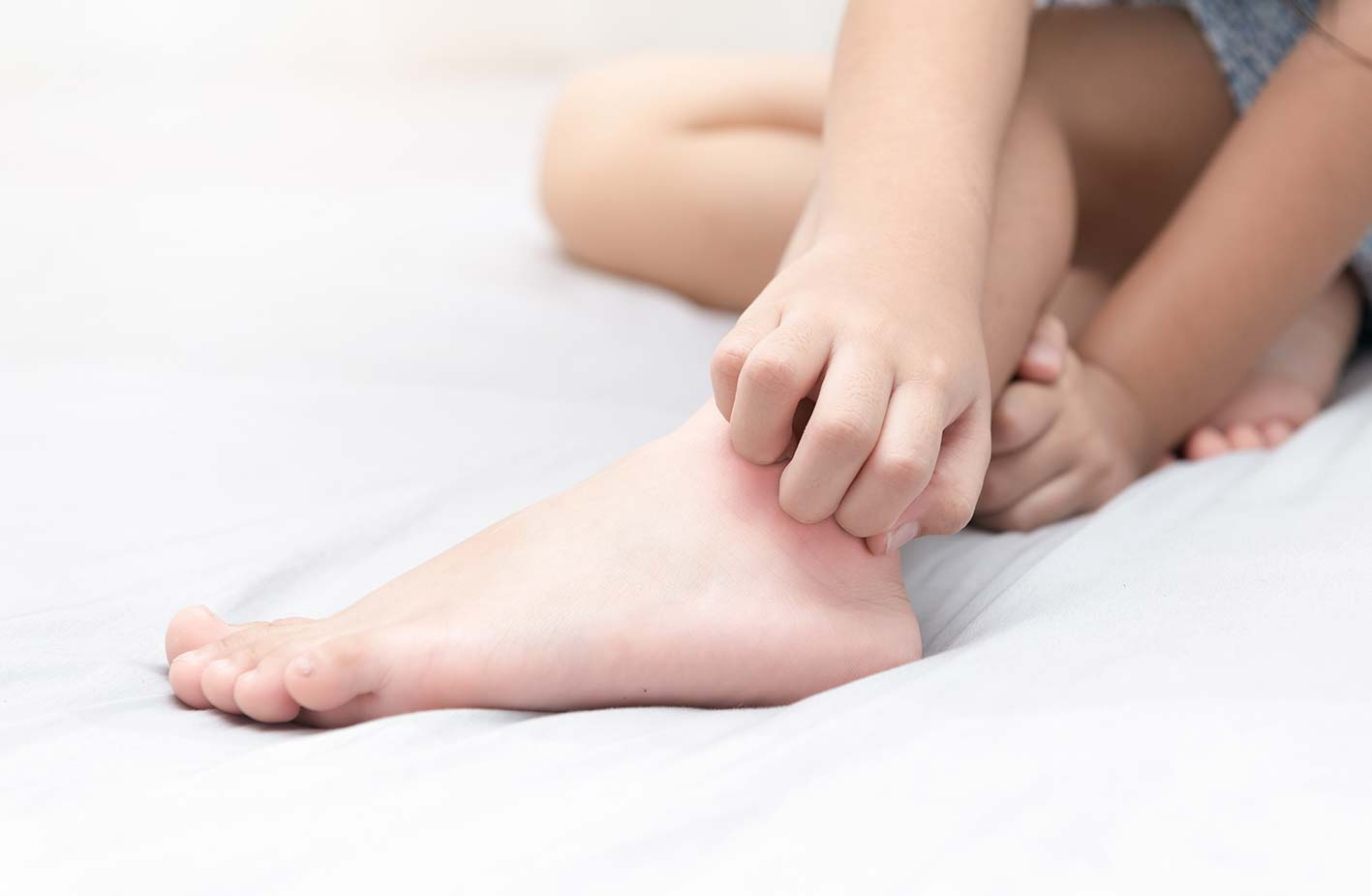 Prurito a letto l importanza della biancheria anallergica auraderma - Prurito diffuso a letto ...